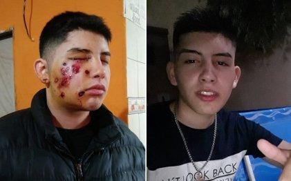 Gatillo fácil: la Justicia de Lomas de Zamora excarceló al policía que dejó ciego a Ignacio Seijas